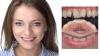 Лечение , протезирование и имплантация зубов в Полтаве на выгодных условиях